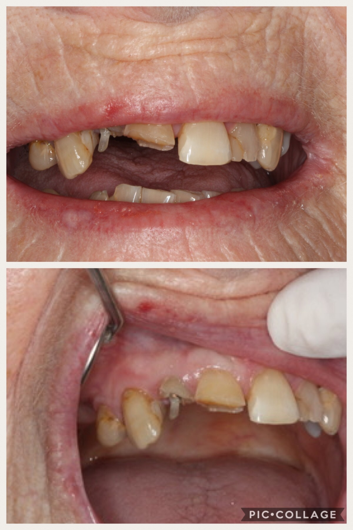 Broken Teeth - Giffnock Village Dental Care